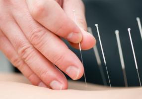 ¿Qué sabes de acupuntura? - CasaFen - Foto de Zilli en Canva